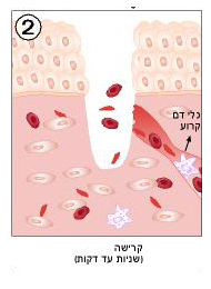 איחוי של פצעים