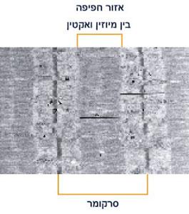 סרקומר מבעד למיקרוסקופ אלקטרונים