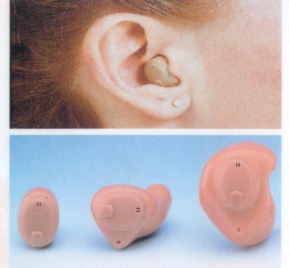 מכשירי שמיעה המורכבים בתוך האוזן
