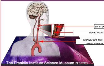 איור של קריש דם וטרשת עורקים בעורק ראשי בצוואר